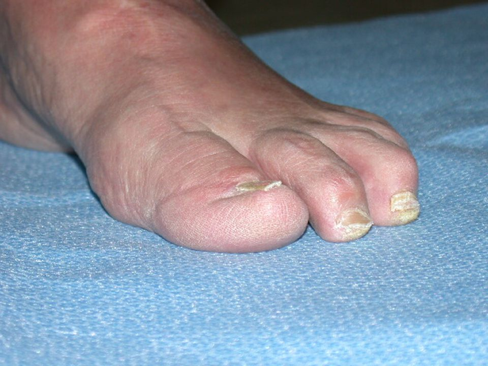 Significant hammer and claw-toe deformities.