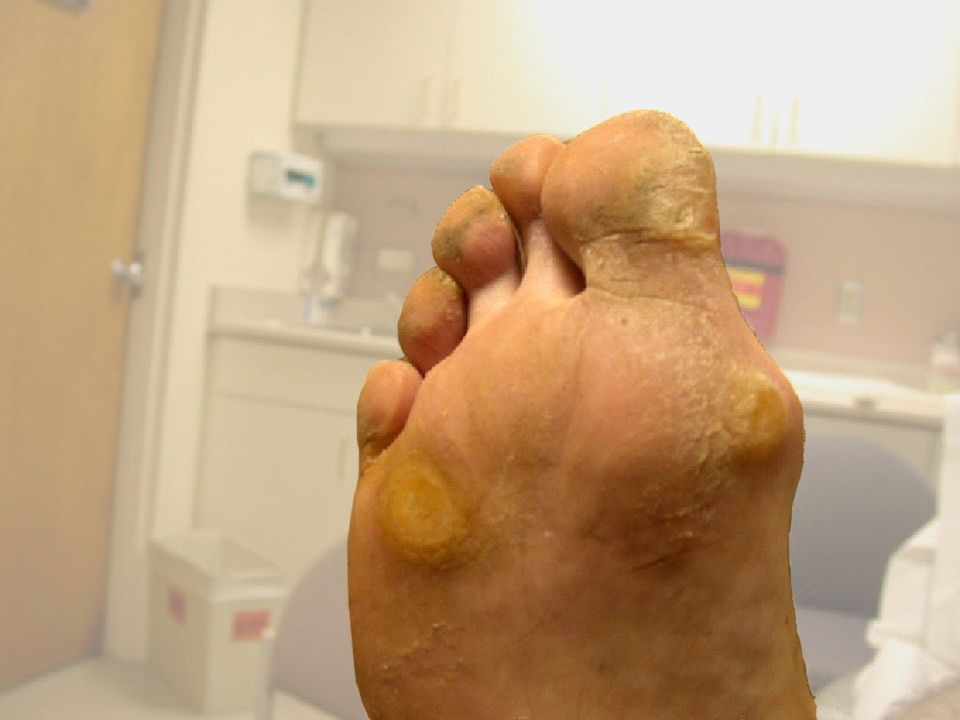Diabetic motor neuropathy has resulted in hammer and claw-toe deformities and very prominent metatarsal heads on the plantar surface of the foot.