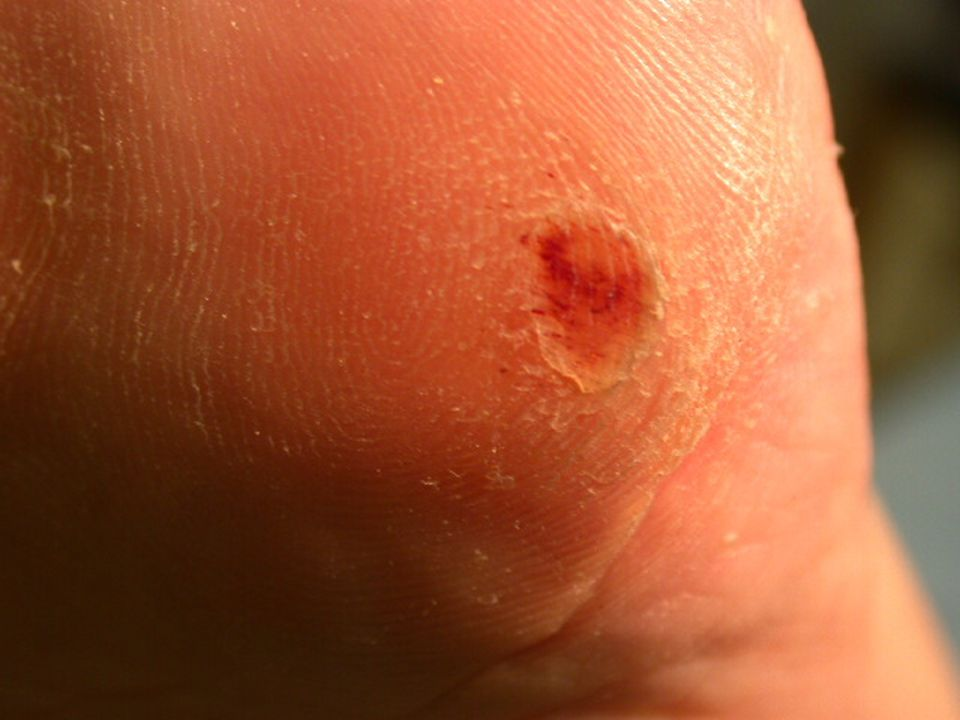 This is an example of a pre-ulcer, a callus beneath which is a subcutaneous hemorrhage as indicated by the visible hemosiderin deposits.