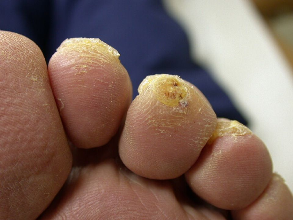 Without very careful physical examination of the feet, this pre-ulcer (callus with subcutaneous hemorrhage) on the tip of the third digit with its claw-toe deformity could easily go undetected.