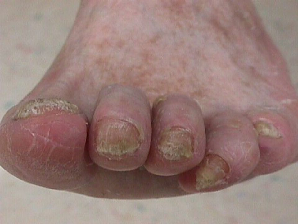 This diabetic patient has multiple abnormalities: hammer and claw-toe deformities, callus formation, nail pathology, and very dry skin with early fissure formation.