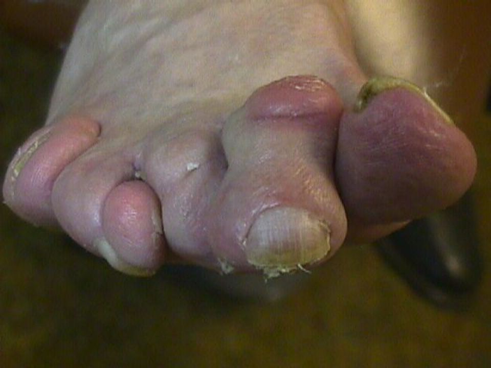 This patient has multiple deformities including hammer and claw toes, prominent metatarsal heads on the plantar surface of the foot and an adductovarus deformity of the fourth toe (the toe literally curves around itself).