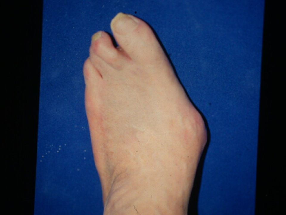 This patient has a Charcot deformity with extensive collapse of the skeletal architecture of the foot.