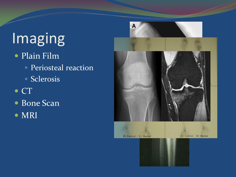 Imaging Plain Film Periosteal reaction Sclerosis CT Bone Scan MRI
