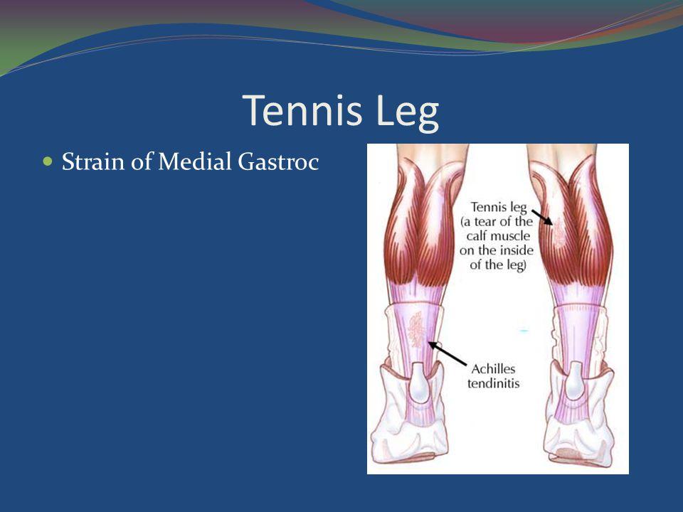 Tennis Leg Strain of Medial Gastroc
