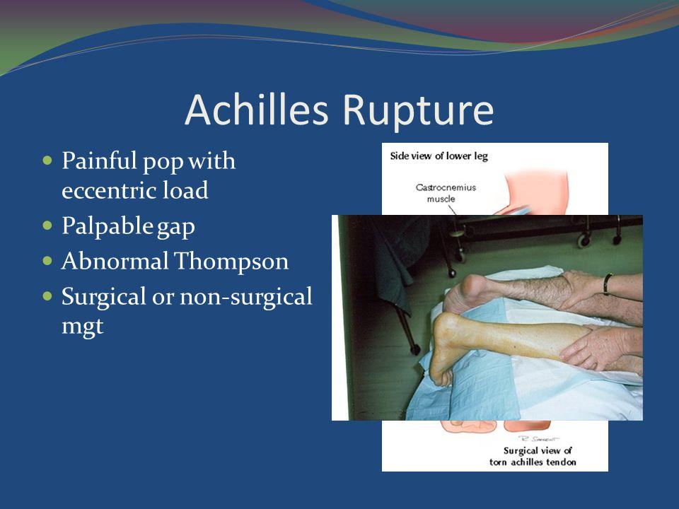 Achilles Rupture Painful pop with eccentric load Palpable gap