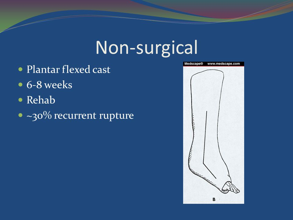 Non-surgical Plantar flexed cast 6-8 weeks Rehab