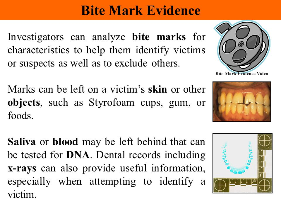 Bite Mark Evidence Video