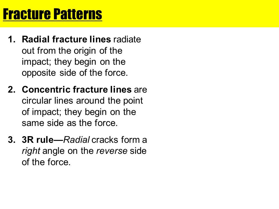 Fracture Patterns Radial fracture lines radiate out from the origin of the impact; they begin on the opposite side of the force.