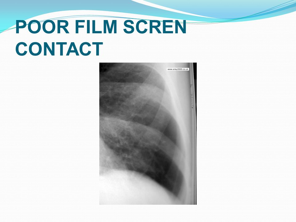 POOR FILM SCREN CONTACT