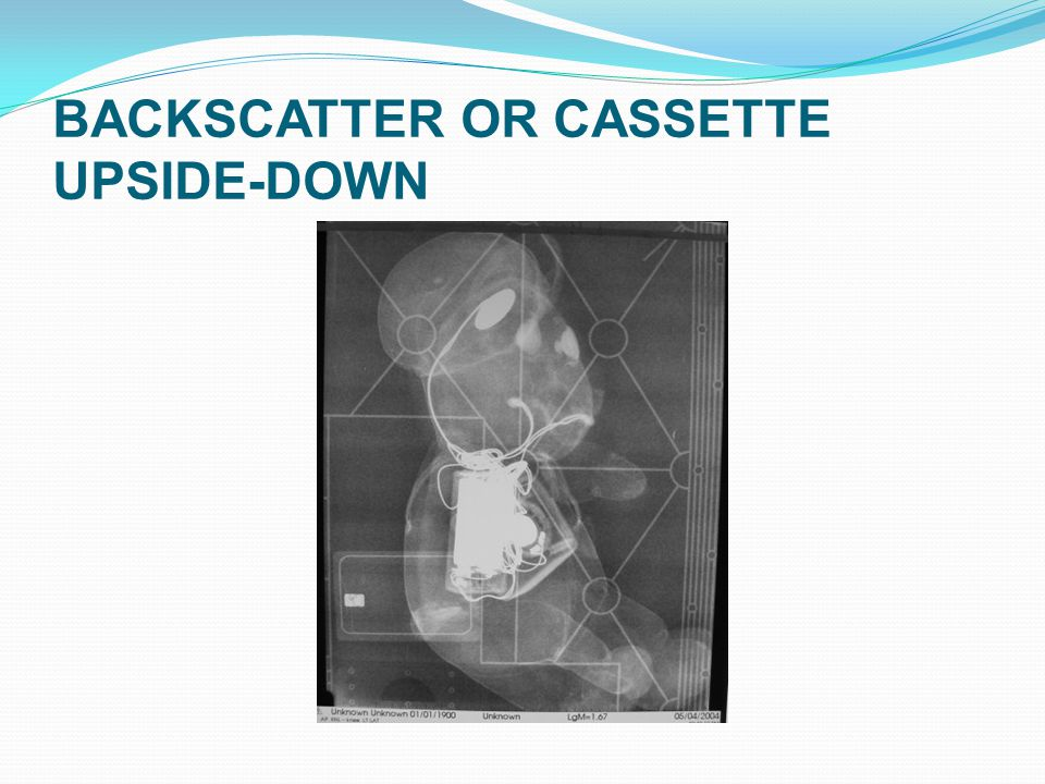 BACKSCATTER OR CASSETTE UPSIDE-DOWN