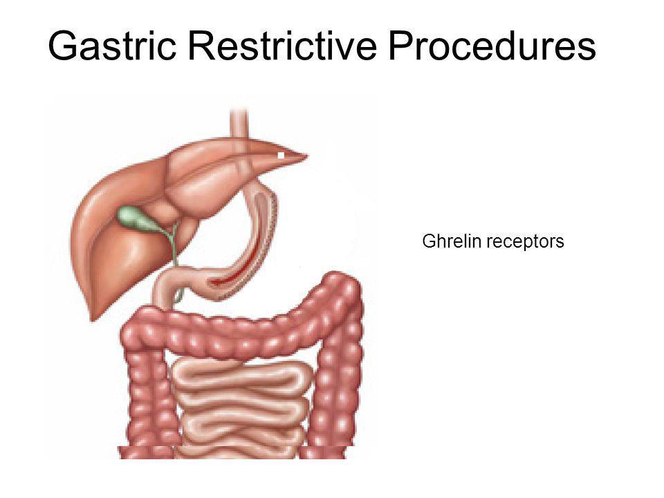 Gastric Restrictive Procedures