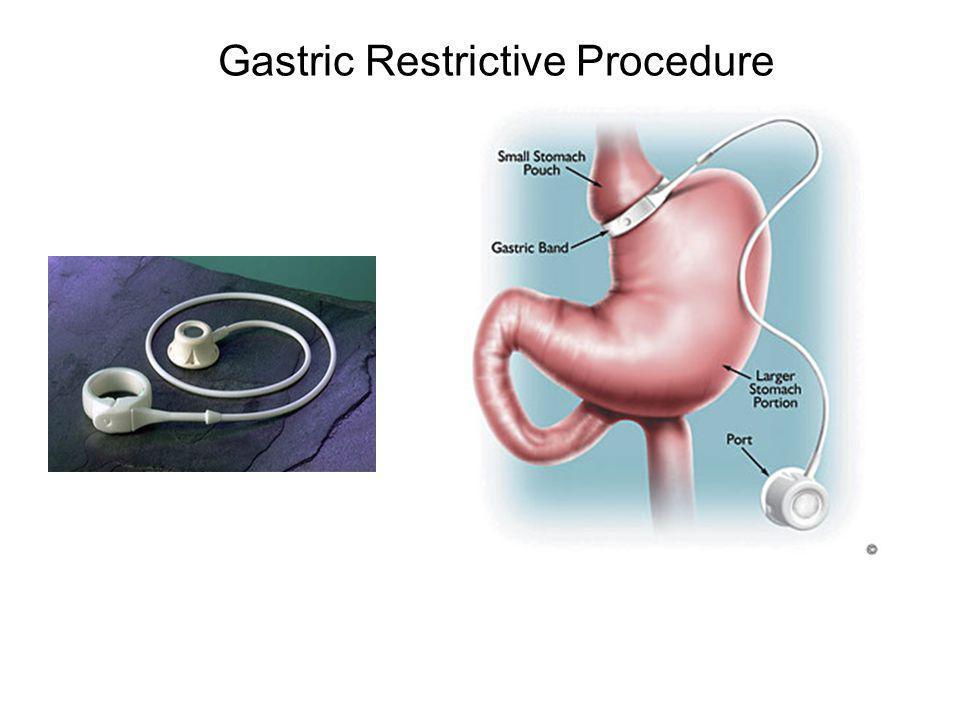 Gastric Restrictive Procedure