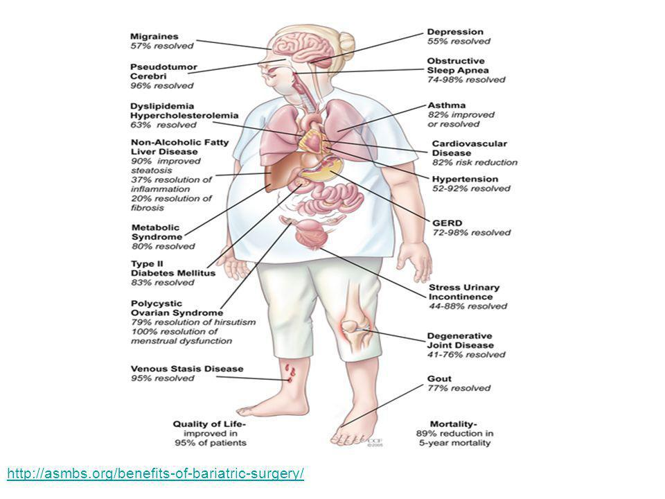 http://asmbs.org/benefits-of-bariatric-surgery/