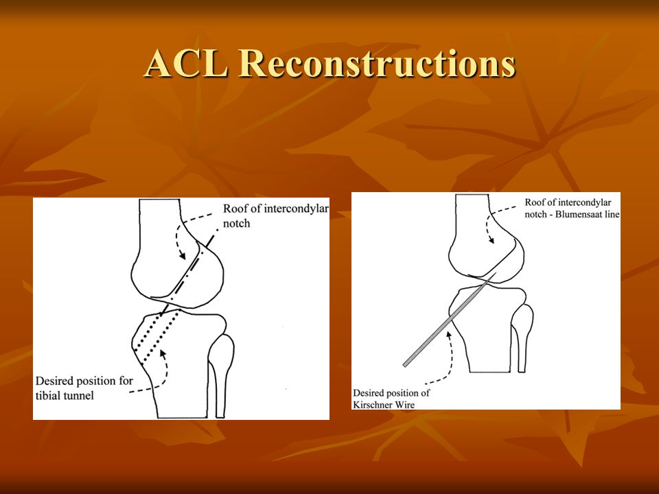 ACL Reconstructions