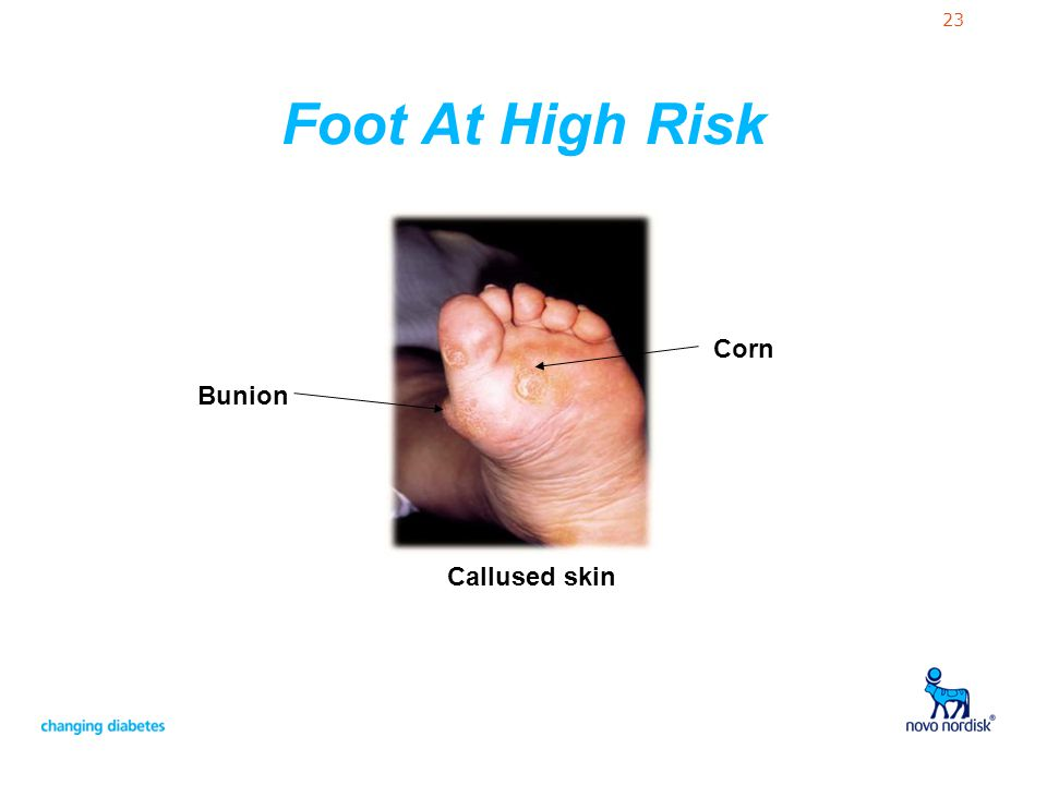 Foot At High Risk Callused skin Bunion Corn