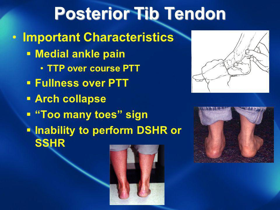 Posterior Tib Tendon Important Characteristics Medial ankle pain
