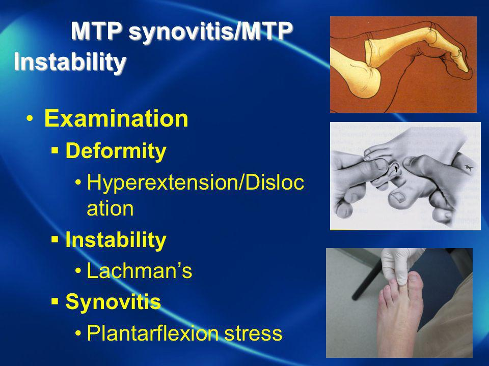 MTP synovitis/MTP Instability