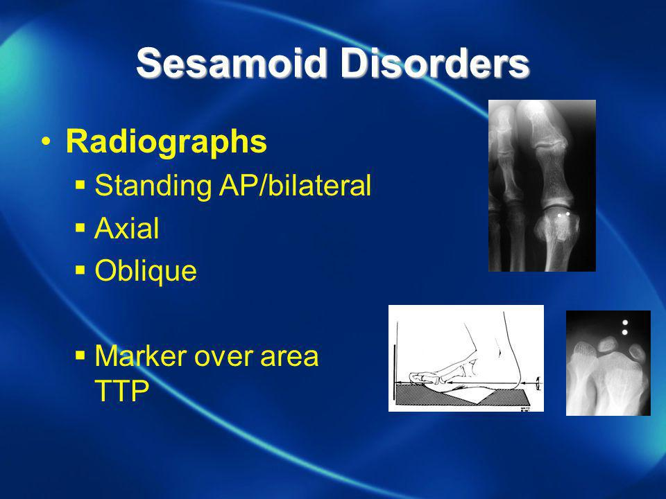 Sesamoid Disorders Radiographs Standing AP/bilateral Axial Oblique
