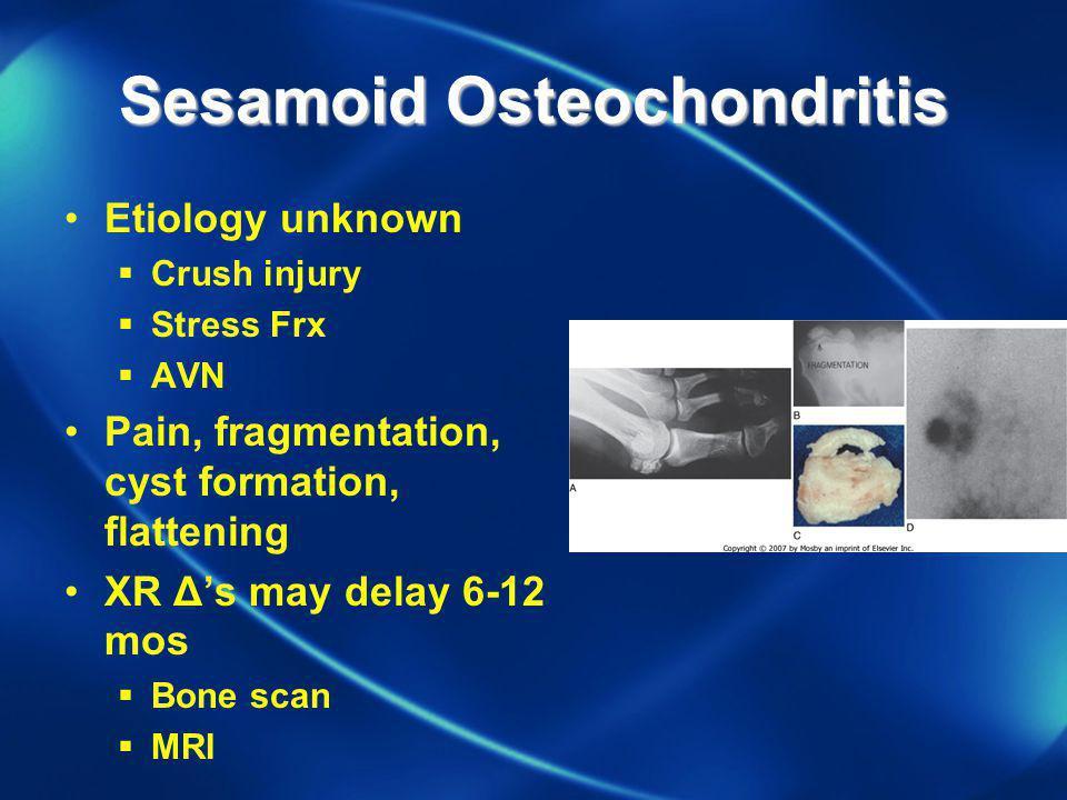 Sesamoid Osteochondritis