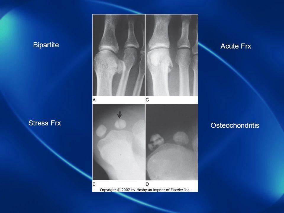 Bipartite Acute Frx Stress Frx Osteochondritis