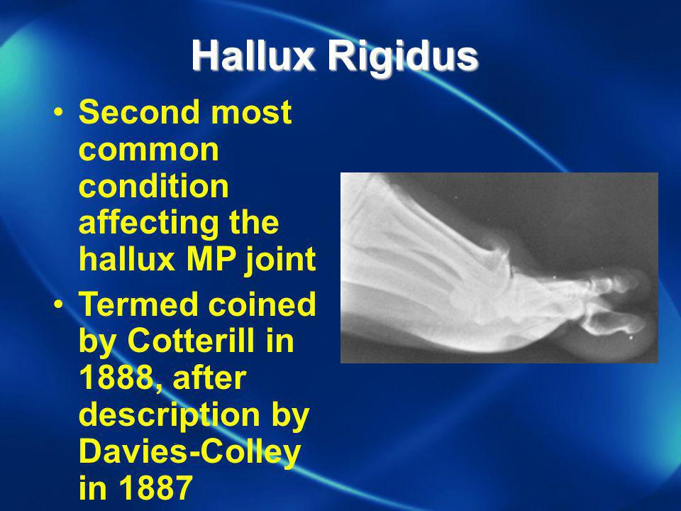 Hallux Rigidus Second most common condition affecting the hallux MP joint.