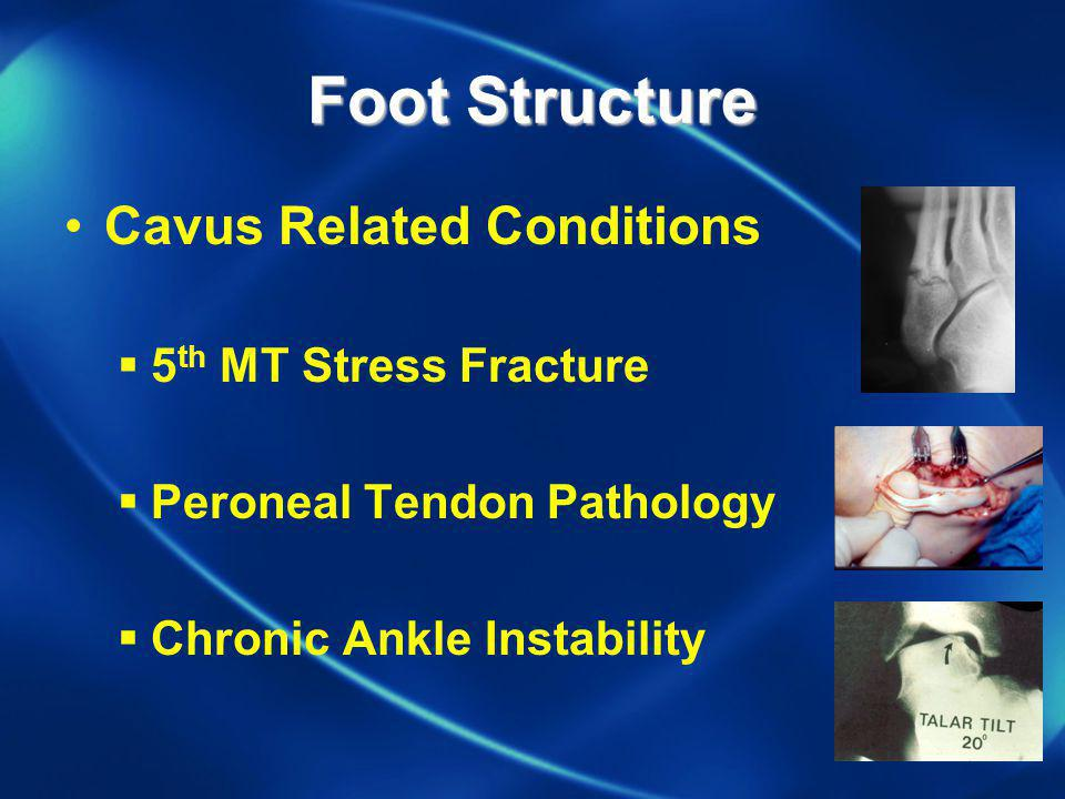 Foot Structure Cavus Related Conditions 5th MT Stress Fracture