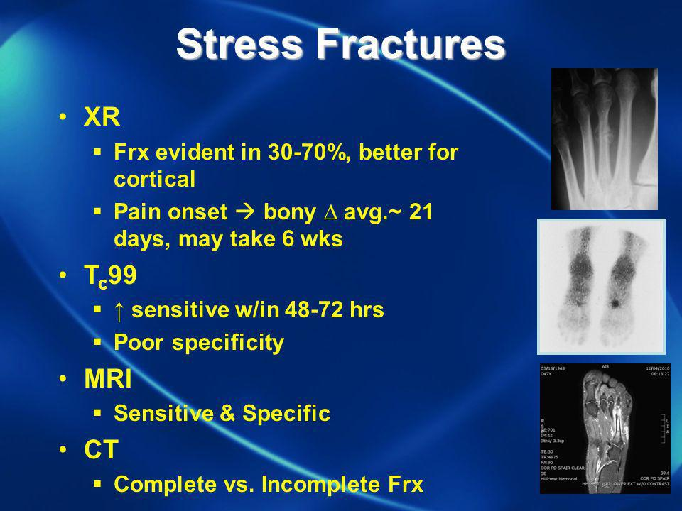 Stress Fractures XR Tc99 MRI CT