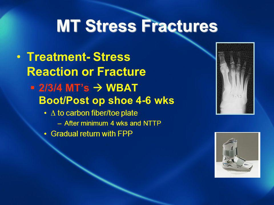 MT Stress Fractures Treatment- Stress Reaction or Fracture