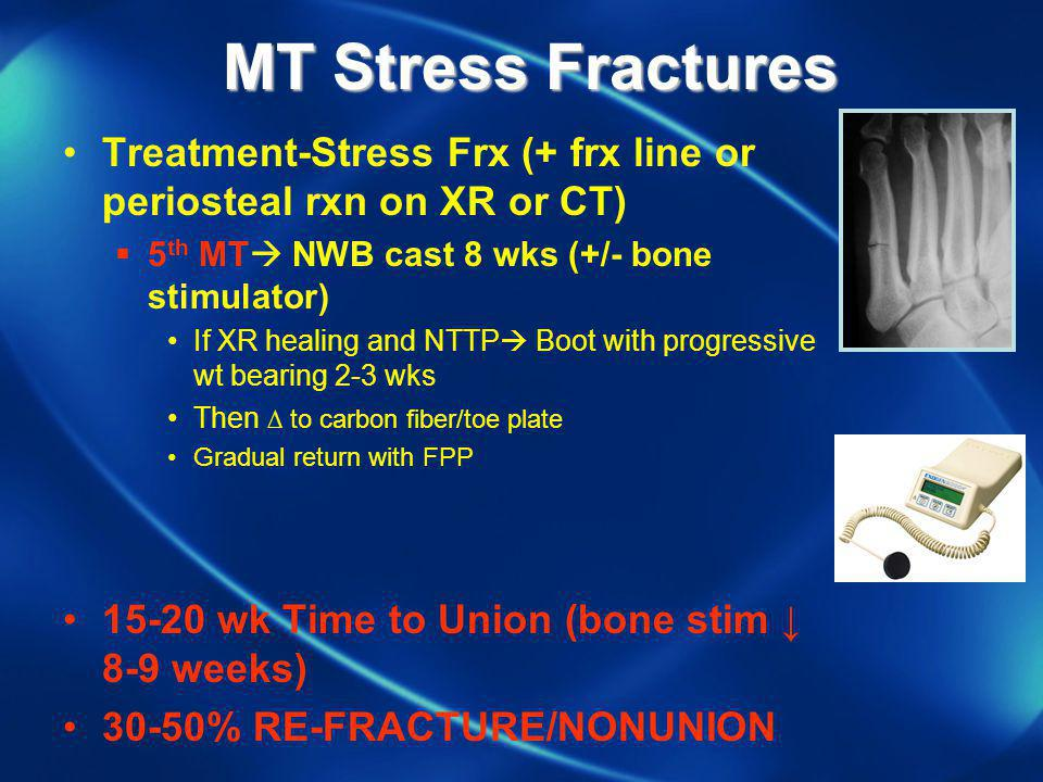 MT Stress Fractures Treatment-Stress Frx (+ frx line or periosteal rxn on XR or CT) 5th MT NWB cast 8 wks (+/- bone stimulator)