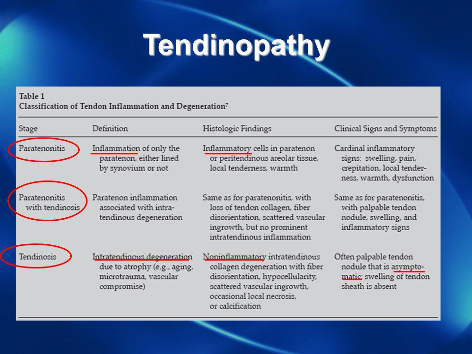Tendinopathy