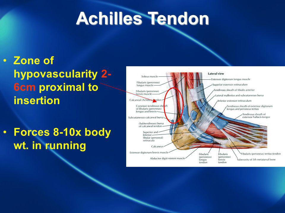Achilles Tendon Zone of hypovascularity 2-6cm proximal to insertion