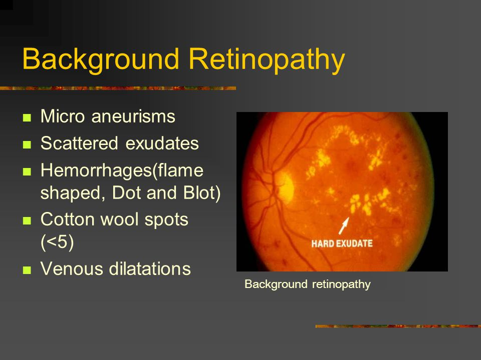 Background Retinopathy