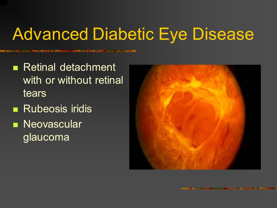 Advanced Diabetic Eye Disease