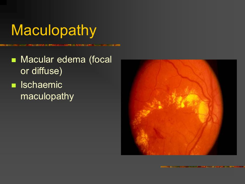 Maculopathy Macular edema (focal or diffuse) Ischaemic maculopathy