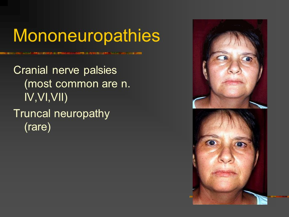 Mononeuropathies Cranial nerve palsies (most common are n. IV,VI,VII)