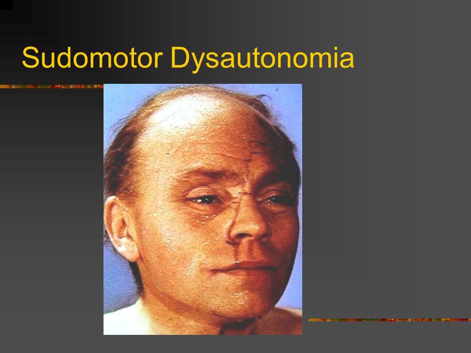 Sudomotor Dysautonomia