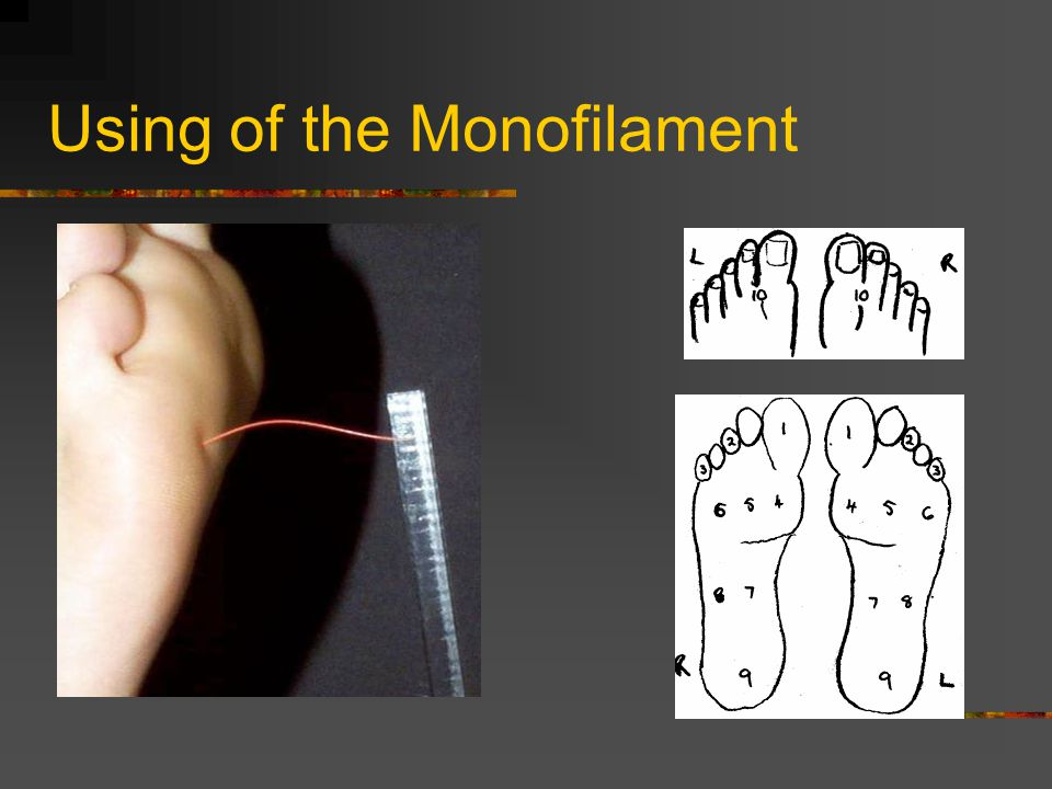 Using of the Monofilament