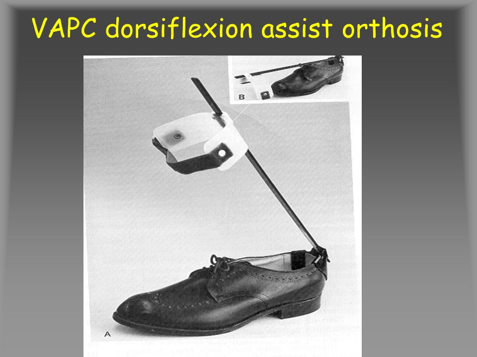 VAPC dorsiflexion assist orthosis