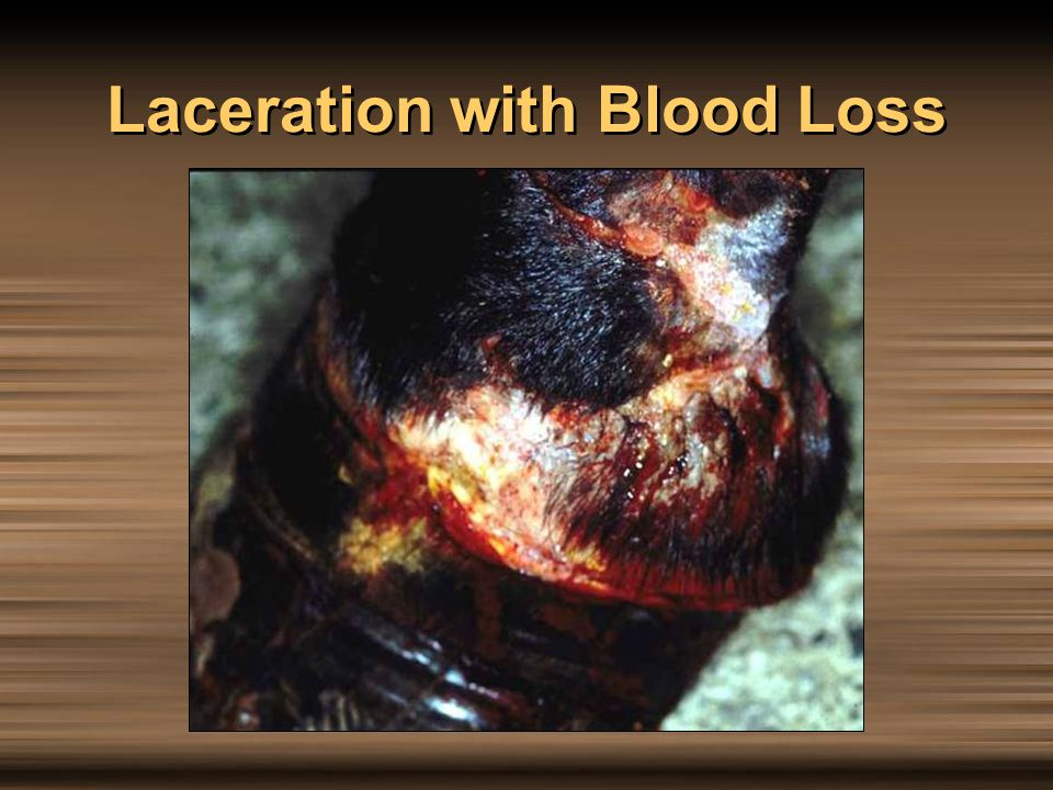 Laceration with Blood Loss