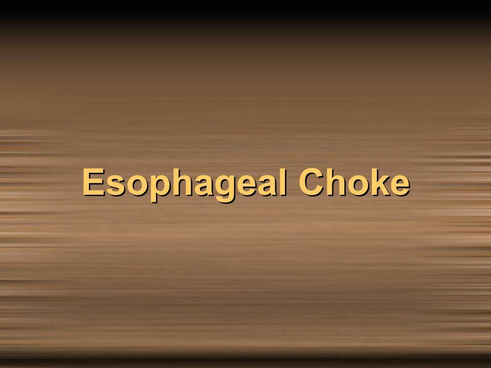Esophageal Choke