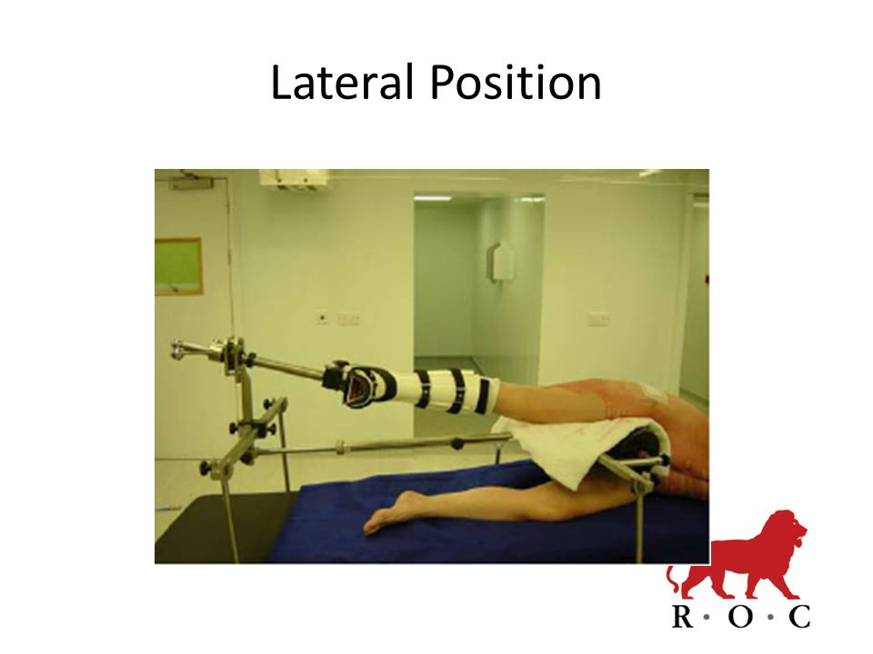 Lateral Position