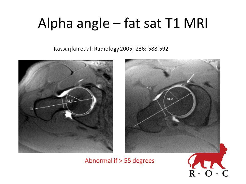 Alpha angle – fat sat T1 MRI