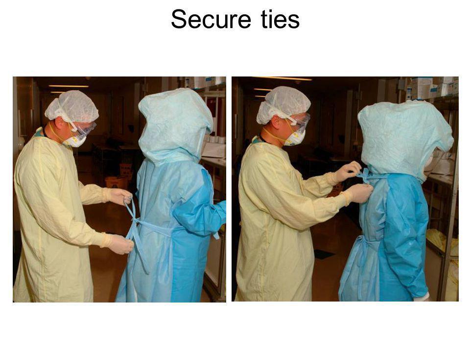 Secure ties