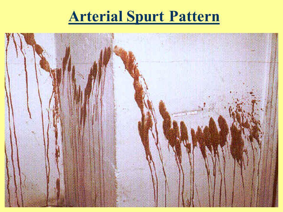 Arterial Spurt Pattern