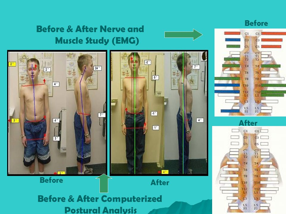 Muscle Study (EMG) Postural Analysis
