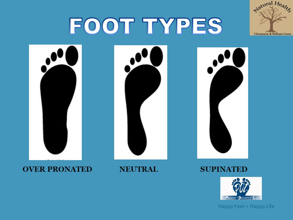 FOOT TYPES OVER PRONATED NEUTRAL SUPINATED Happy Feet = Happy Life