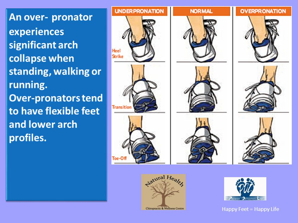 Over-pronators tend to have flexible feet and lower arch profiles.