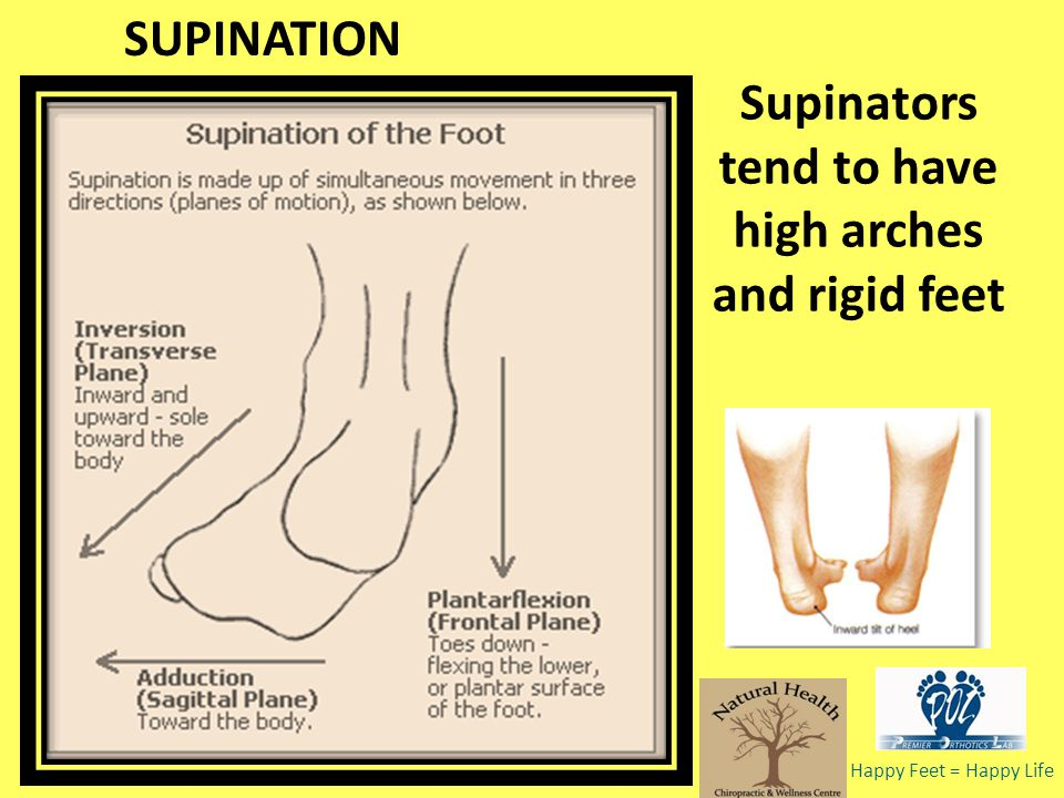 Supinators tend to have high arches and rigid feet