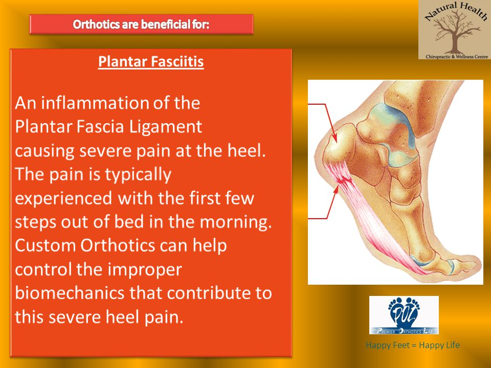 Orthotics are beneficial for:
